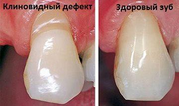 треугольный зуб