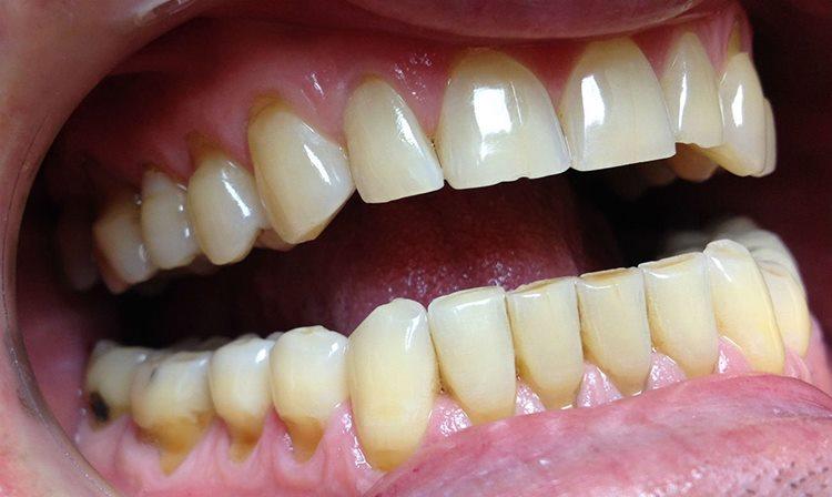 дефект зубов