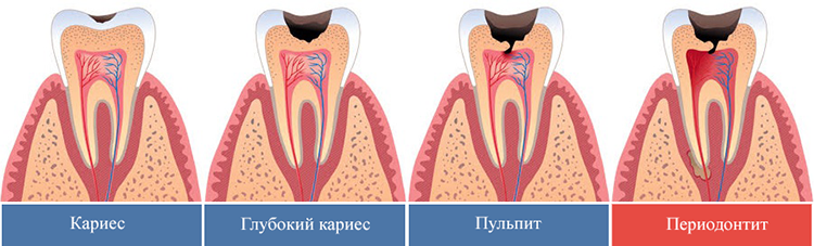 периодонтит и кариес