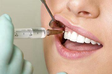 стоматологическое лечение