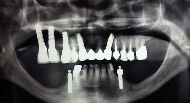 отторгается имплант - видно на рентгене