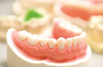 протезы в зубы