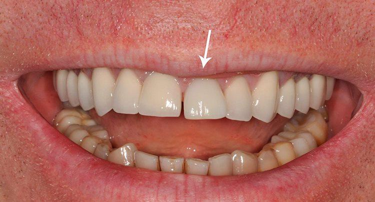 имплантация переднего зубного ряда