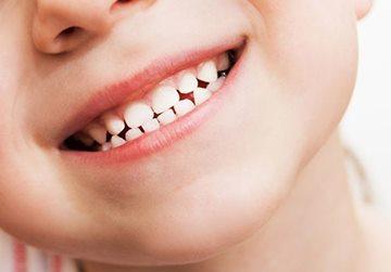 здоровые молочные зубы