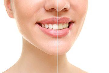 зубное отбеливание
