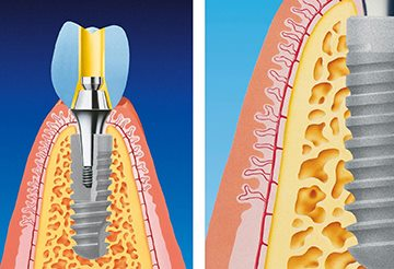 процесс имплантации