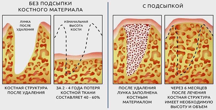 остеопластика