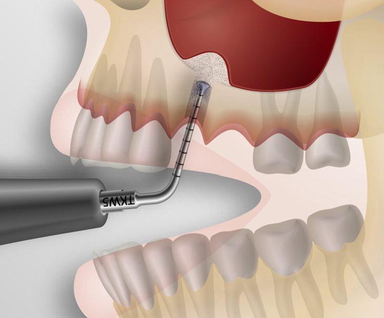 лифтинг зубов