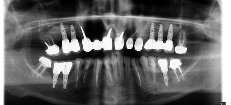 имплантация стоматологическая