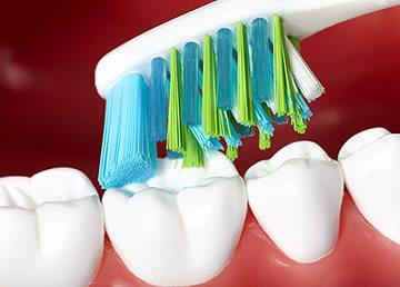 скольжение щетки по зубам