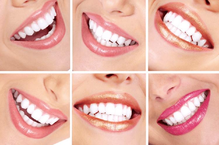 Чистые белые зубы