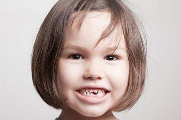 Количество зубов у детей