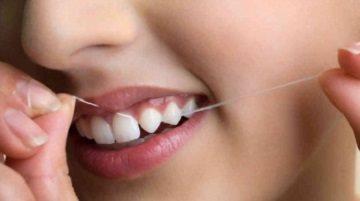 Чистка зубов для избежания зубного налета