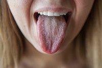 Язык с налетом