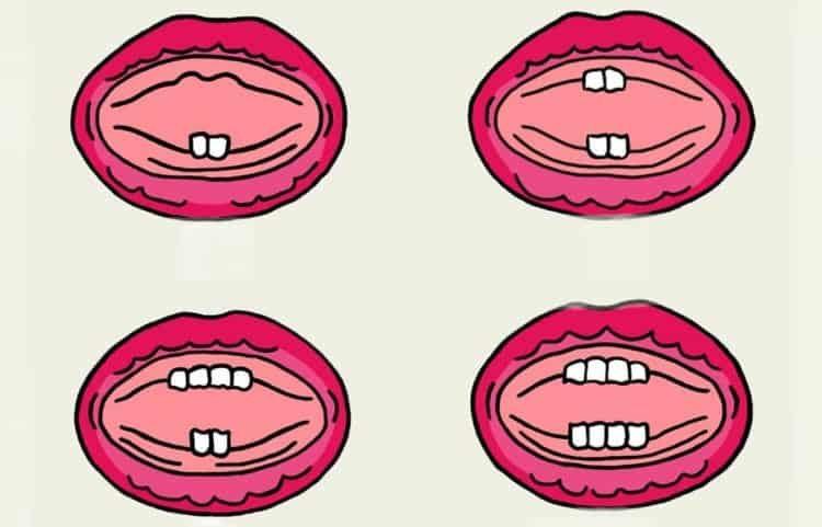первые зубы - прорезывание