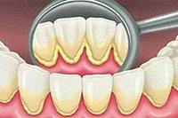 твердые отложения на зубах