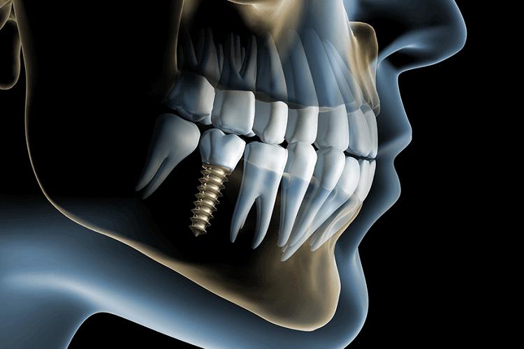 после удаления зуба через сколько можно делать имплантацию
