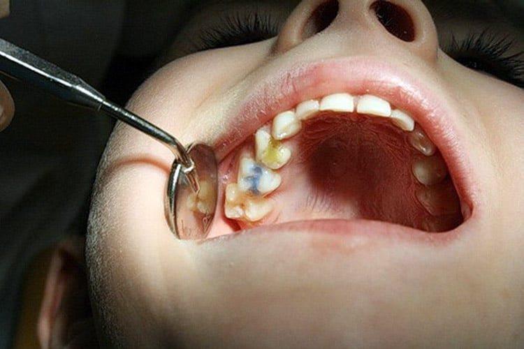 поражение молочного зуба