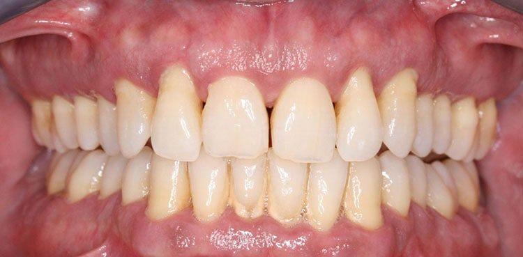 поражение зубов