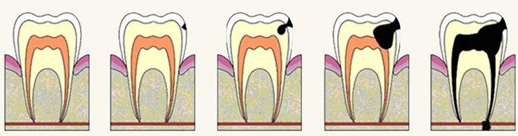 развитие болезни - кариес - пульпит - периодонтит