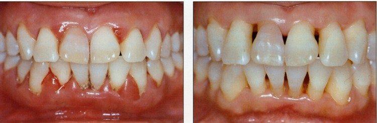 Плазмолифтинг в стоматологии: методика лечения десен