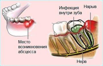 Что делать если лопнул флюс — Зубы