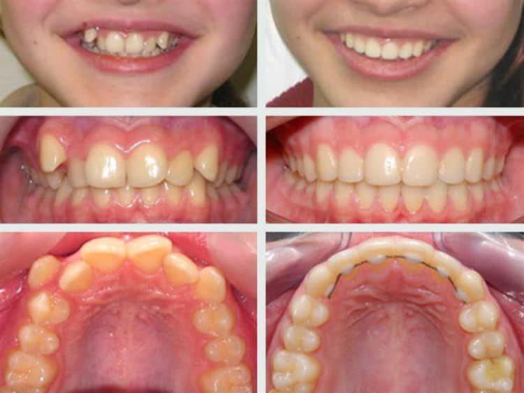 Исправление прикуса у детей детская капа для зубов
