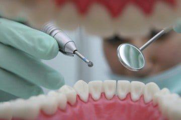 Может ли болеть корень зуба при удаленном нерве