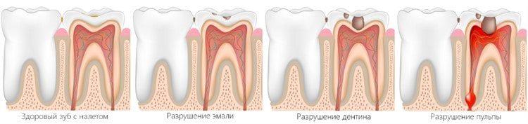 Удалять зуб во время месячных 24