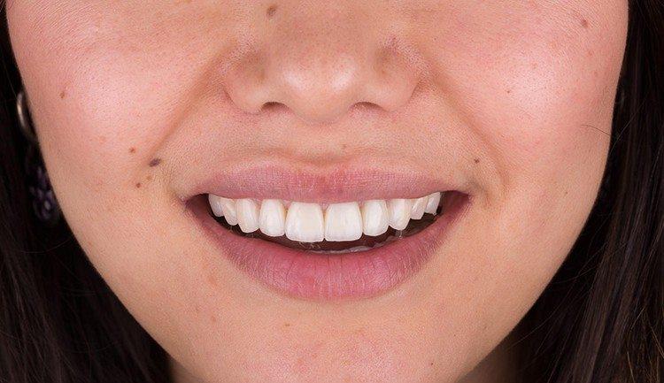 передние зубы - коронка