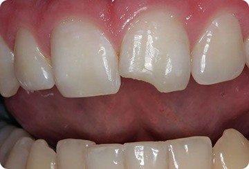 сколы зуба