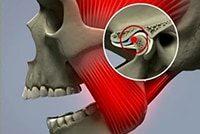 киста суставов челюсти