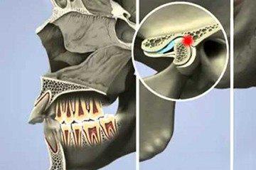 воспалительный процесс в пазухе челюсти