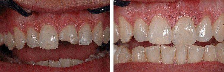 результат восстановления зубов