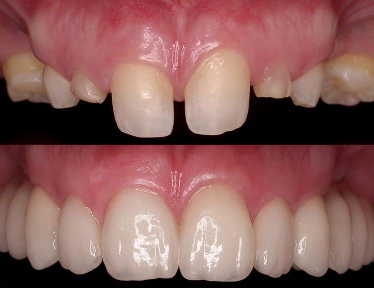 зубы после восстановления циркониевыми коронками