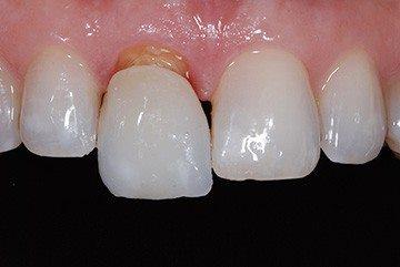 коронка полностью повторяет зуб