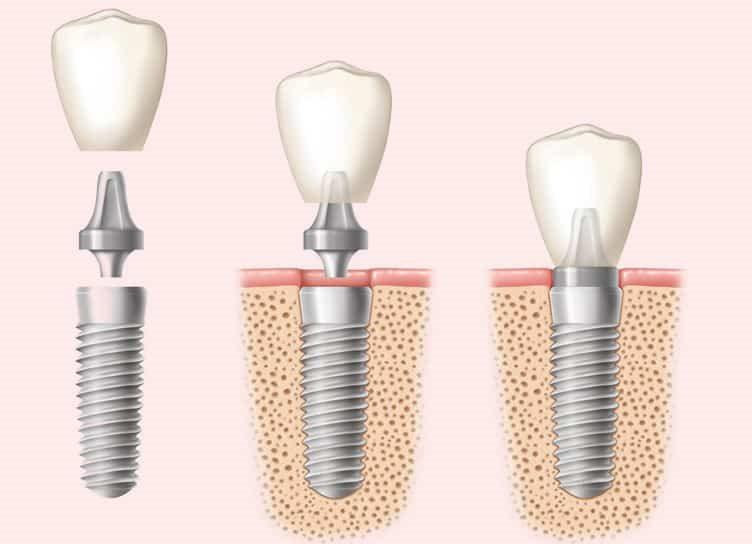 что такое имплантация зубов википедия