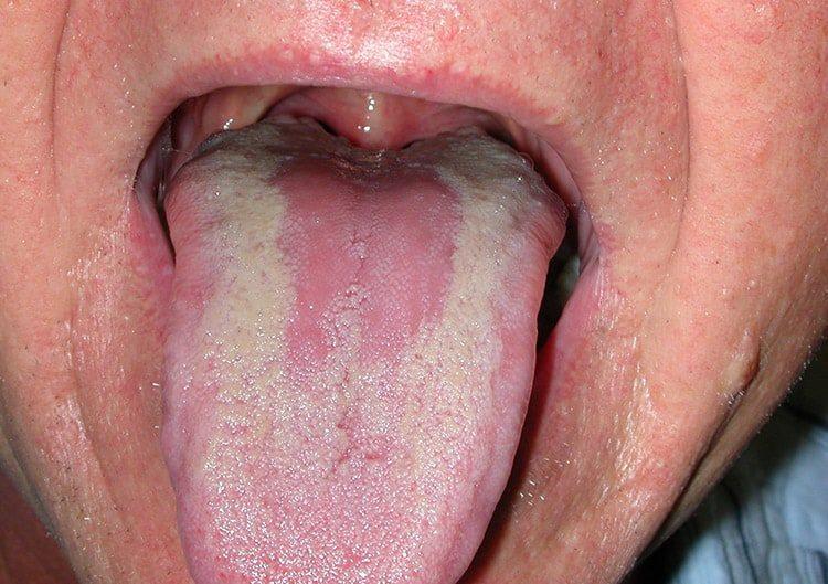 язык в трещинках