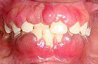 неприятная болезнь гипертрофического гингивита