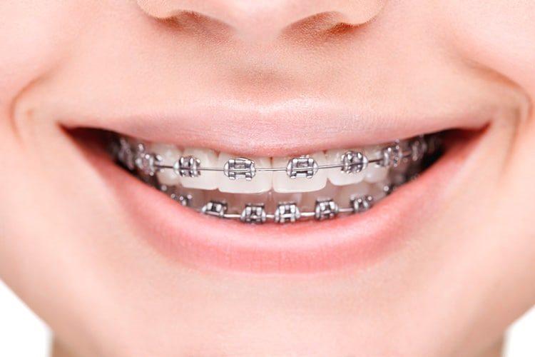 металлические скобы на зубы