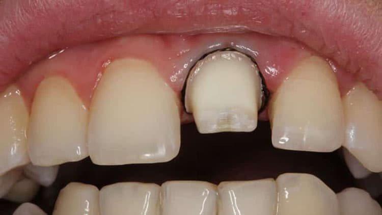 заточка зуба под коронку