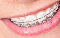 металло-керамика зубных брекетов