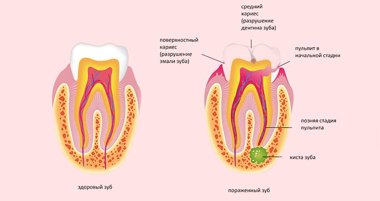 формирование кисты зуба