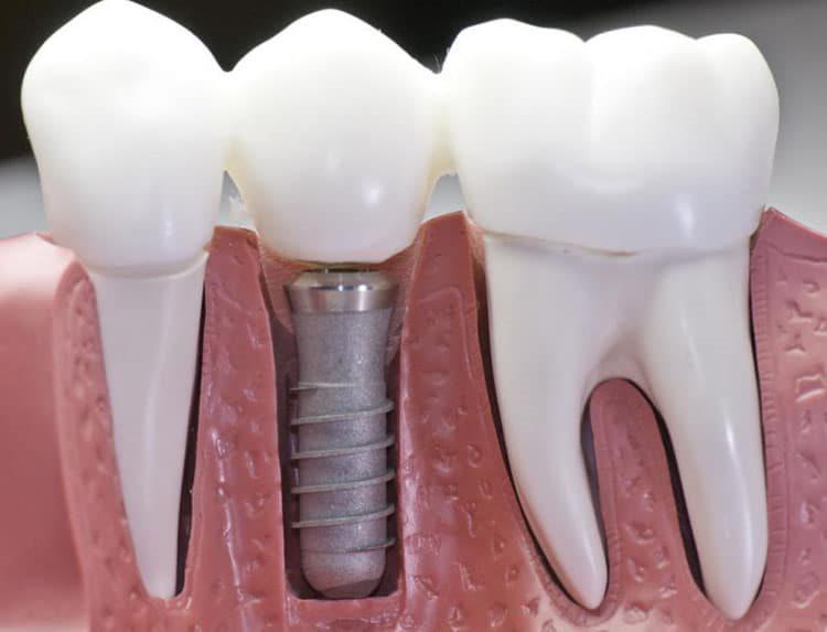 установленный имплантат