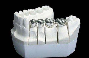 металлокаркач для коронок зубов