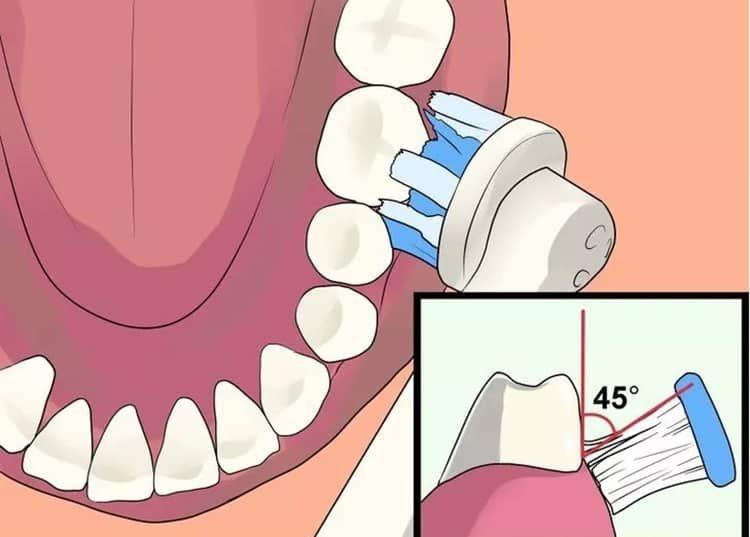 зубная щетка под углом 45 градусов