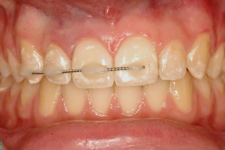 шины на зубах