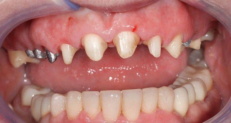 обточка зубов перед постановкой коронок
