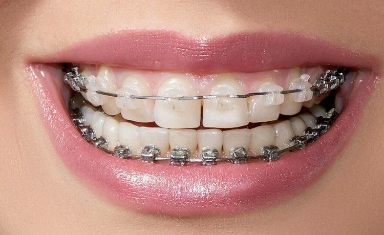 Сколько нужно носить брекеты чтобы выровнять зубы