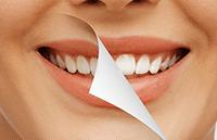 чистка зубного камня